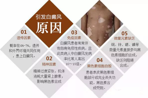 20岁男性颈部白癜风该用什么方法治?
