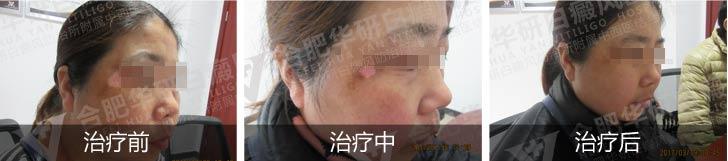 白癜风治疗手段