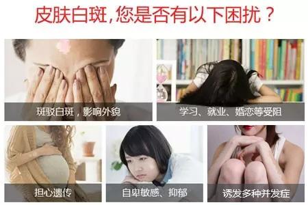 孕妇身上得了白癜风会有哪些危害呢?