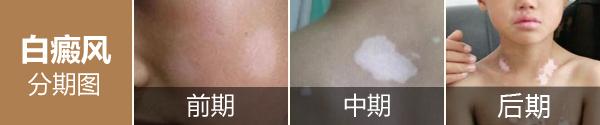 白癜风白斑在不同时期的症状