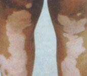 夏季白癜风治疗,预防白癜风复发