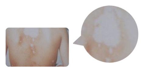 面对身上复发的白斑,患者应该怎么做