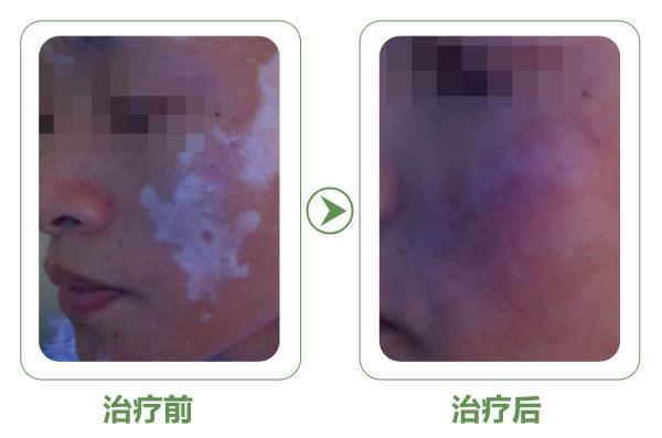 用UVB照射白斑后发红是正常的吗