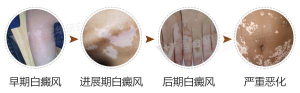 怎么诊断皮肤白斑是不是白癜风呢?