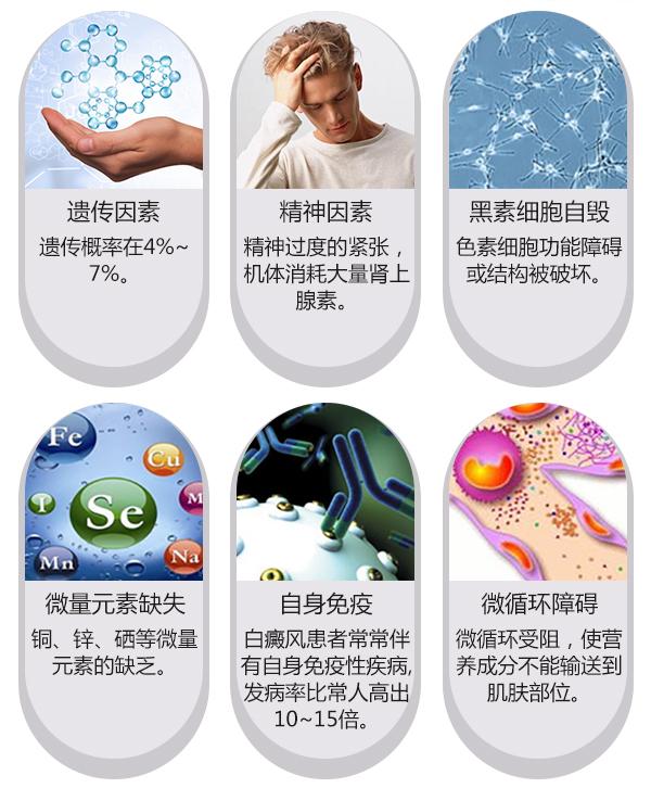 女性胸部患白癜风的原因一般是什么呢?