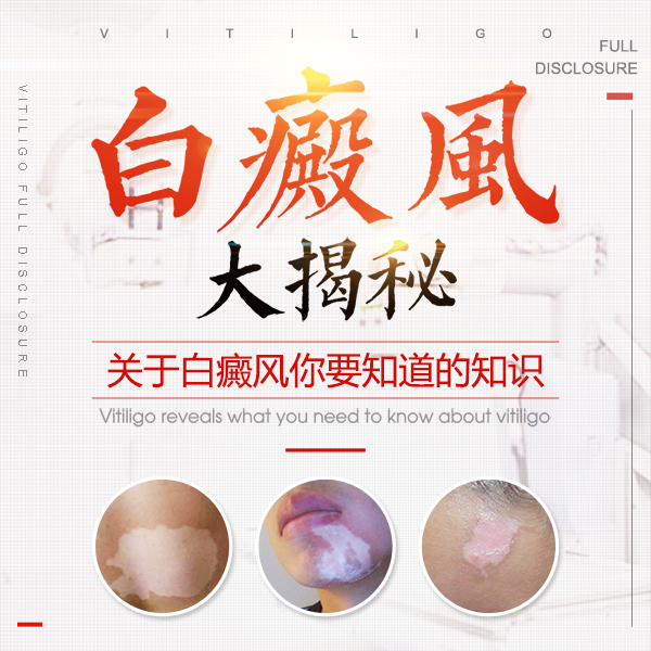岳阳不错的白癜风医院 治疗过程中白斑起了水泡是怎么回事