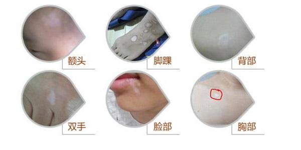 阜阳白癜风医院:嘴唇扩散中的白癜风会传染吗