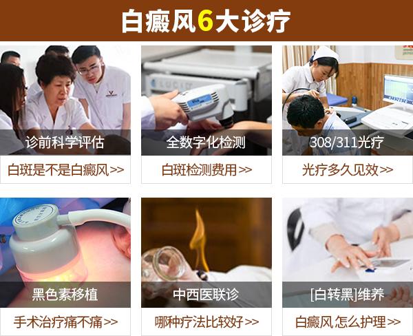 白癜风诊治