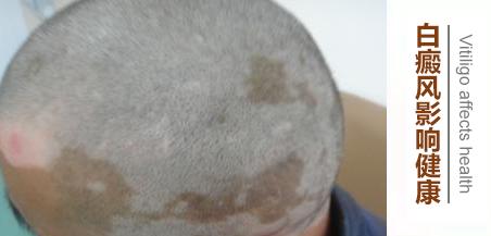 身上出现白斑治疗要注意什么?