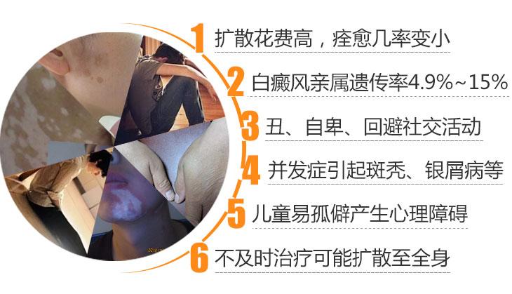 白癜风不治疗会给患者带来哪些伤害