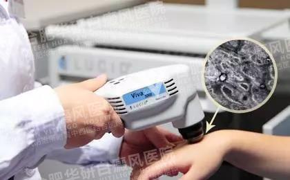 手部有白癜风用308激光治疗合适吗?