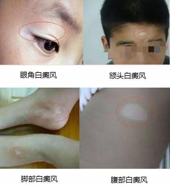 亳州白癜风医院:白斑经常用力摩擦好不好?