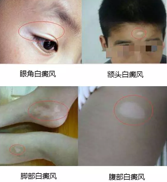 合肥白癜风医院:打补骨脂针多久能见效果?