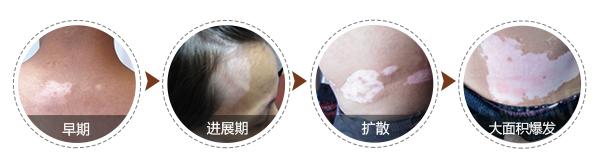 阜阳白癜风医院:很久的白癜风有可能治好吗?