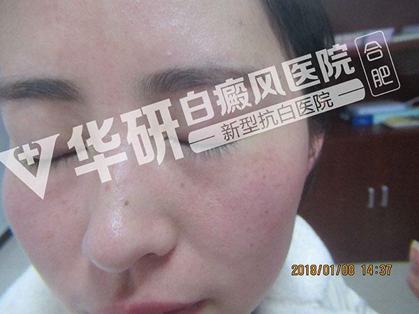 怎么去诊断脸部的白癜风症状?