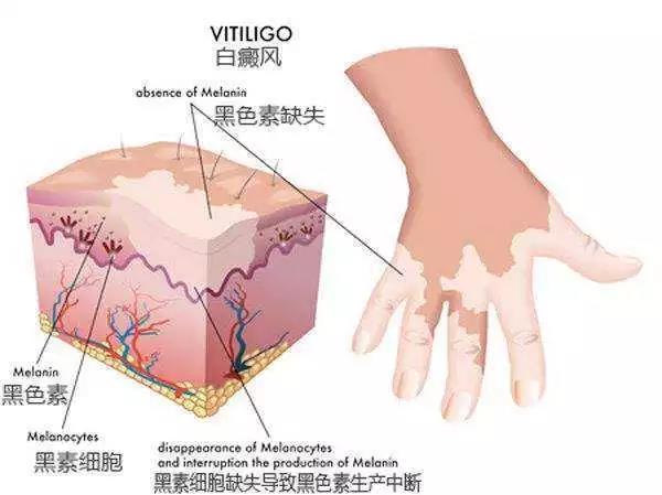 治疗手脚白斑一般多久见效?