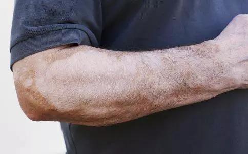 双臂白癜风有何症状