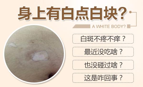 合肥白癜风医院详解什么是炎症性白癜风?