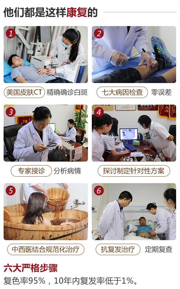 白癜风治疗选择合肥哪家医院