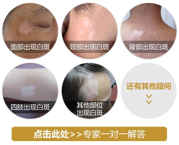 蚌埠白癜风医院:白癜风白斑部位发痒怎么处理