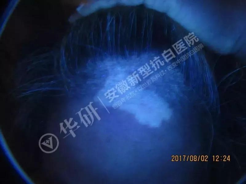 合肥华研白癜风医院口碑