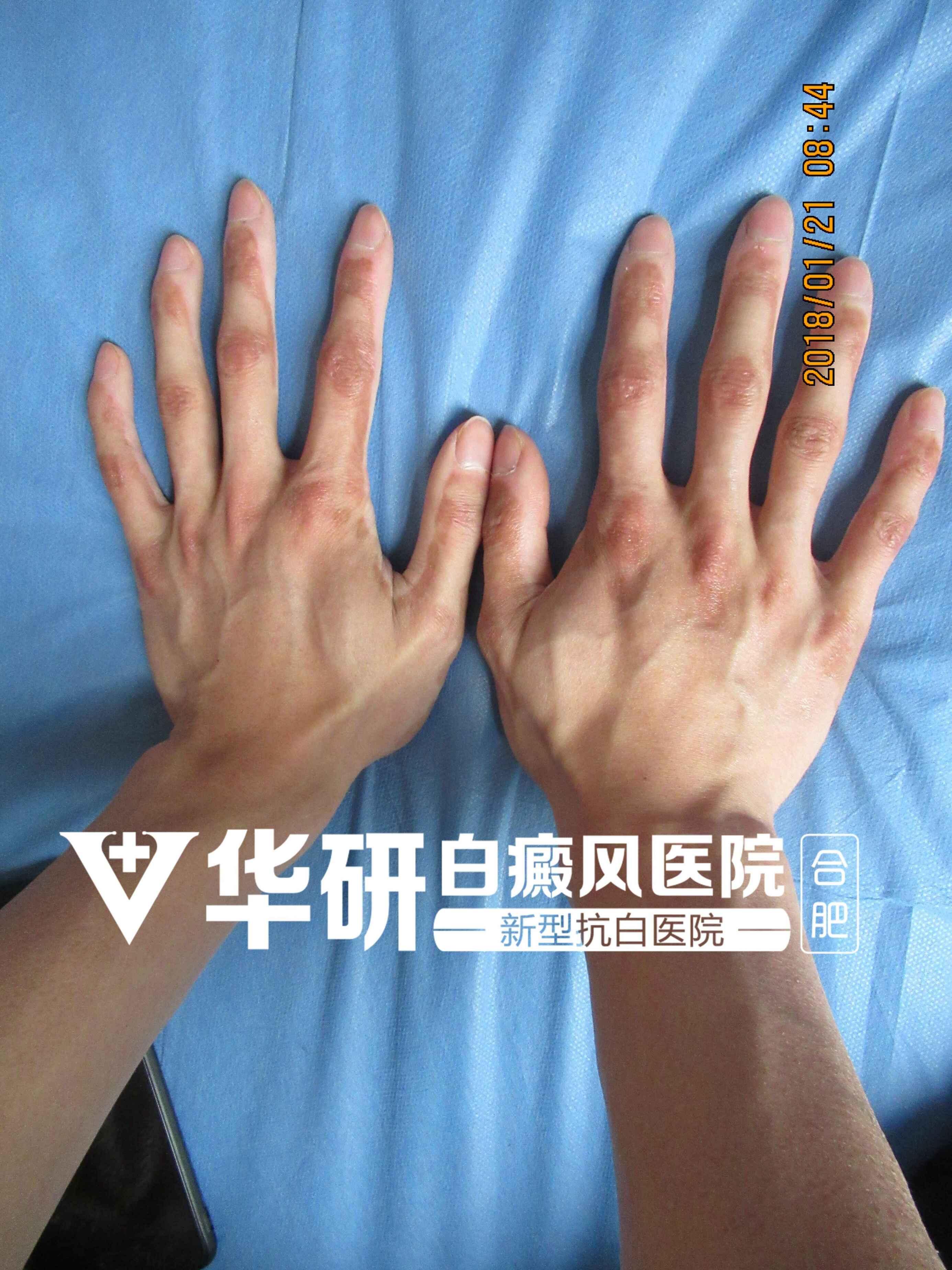 亳州白癜风医院讲解手部白癜风有哪些危害?