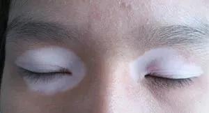 蚌埠白癜风医院:白癜风疾病对眼睛造成的危害