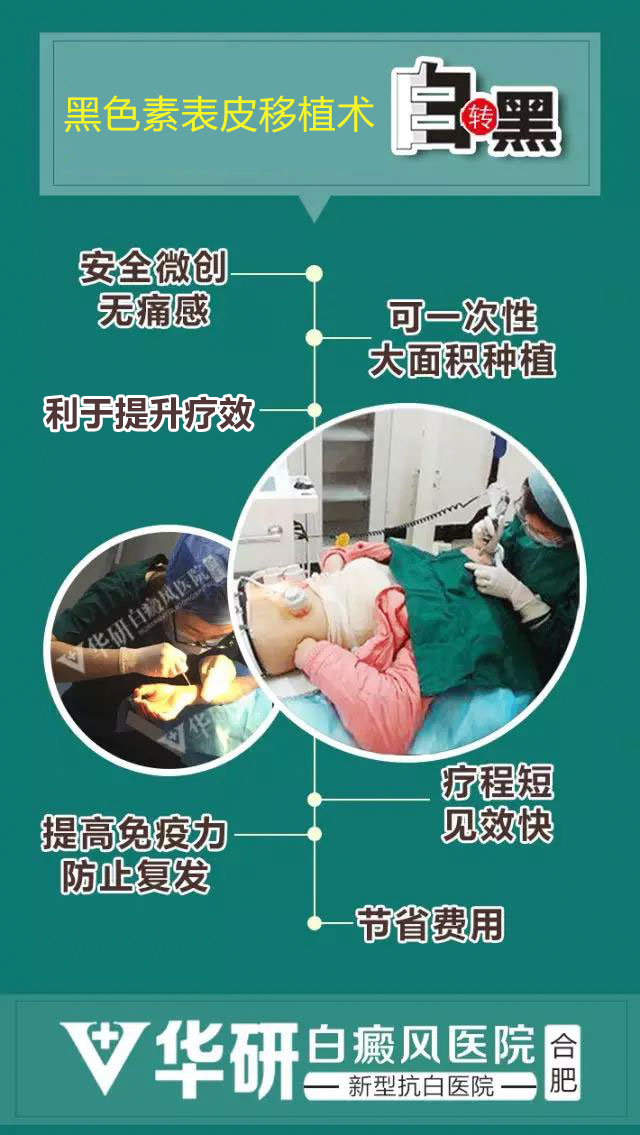 阜阳白癜风医院:植皮治疗白癜风效果真的好吗