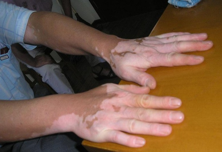 合肥手部出现白癜风的危害