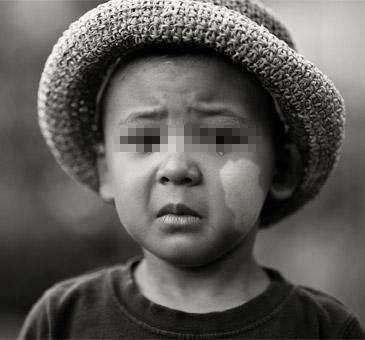 儿童白癜风通常会长在哪里?