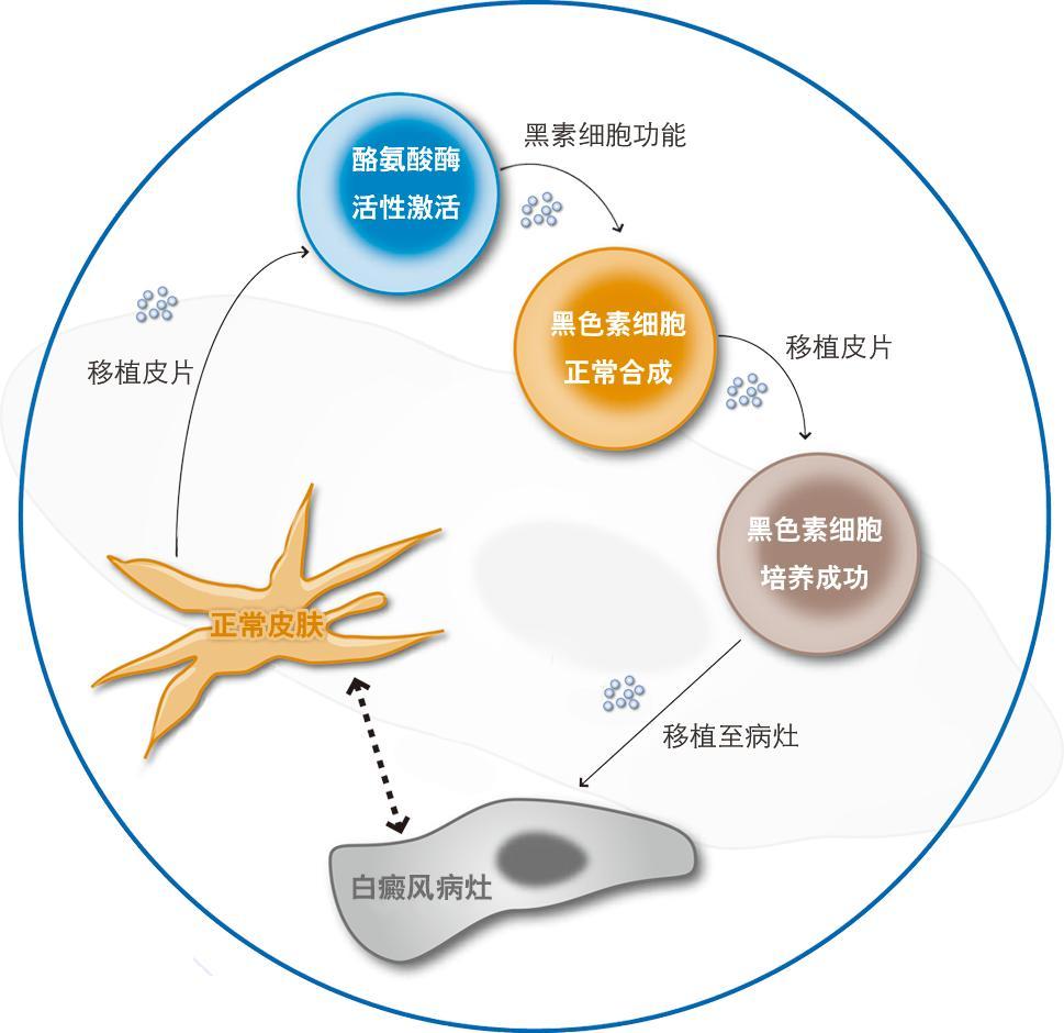 黑色素细胞培植术疗法
