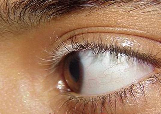 眼睛周围长了白癜风会不会影响视力
