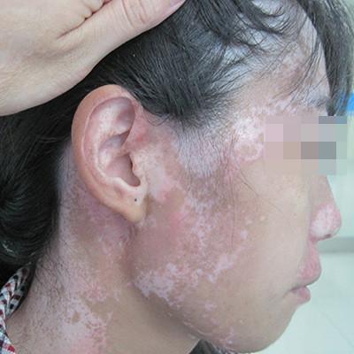白癜风病发之后多久会扩散?