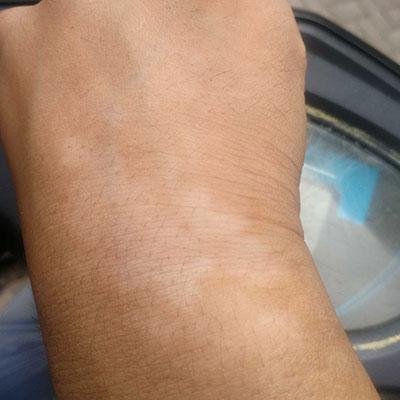 合肥白癜风医院解析手部白癜风的发作原因