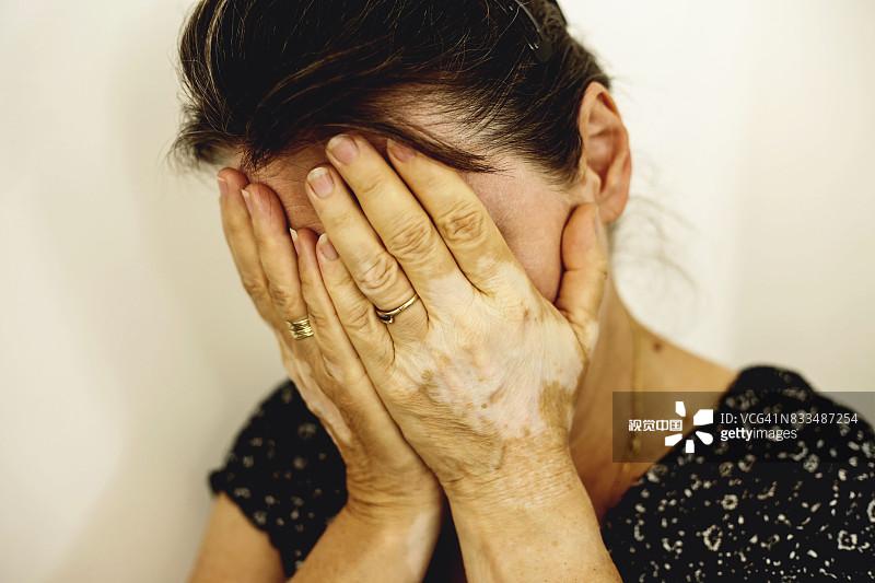 蚌埠白癜风医院讲解如何处理肢端型白癜风心理问题