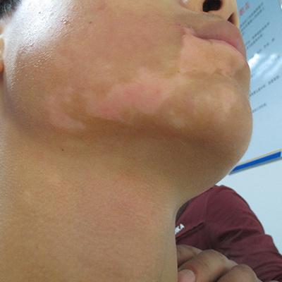 亳州白癜风医院解答紫外线会对白癜风有影响吗