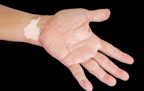 手腕上出现白癜风是怎么回事?