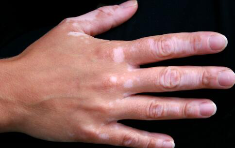 手背上有隐约的白斑是不是白癜风呢?