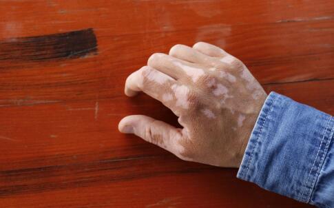 手背上出现白癜风要用什么方法治疗?
