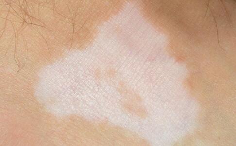 长了个小白斑可以暂时不治疗吗?