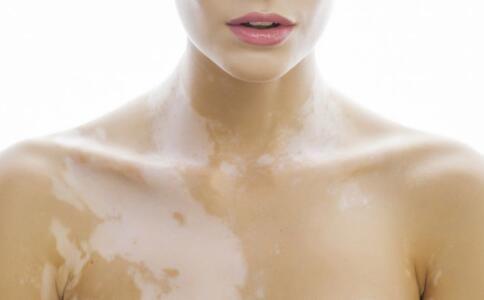 六安胸上出现白癜风的早期症状是什么?