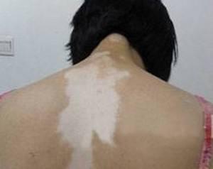 背上皮肤白色