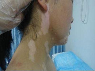 女性脖子上长块白癜风能用遮盖液吗?