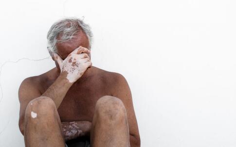 蚌埠白癜风医院怎么消除男性的心理障碍