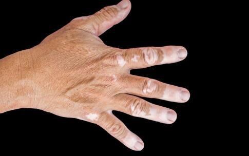 手背上有白斑是什么