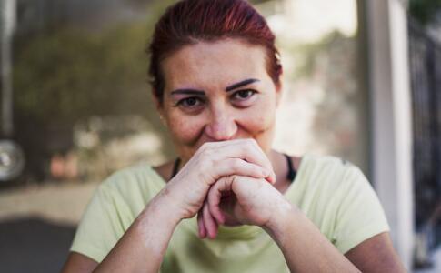 调节女性白癜风患者内分泌