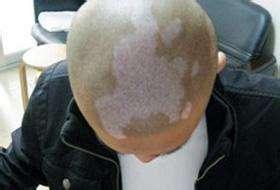 头上有块白斑是白癜风吗