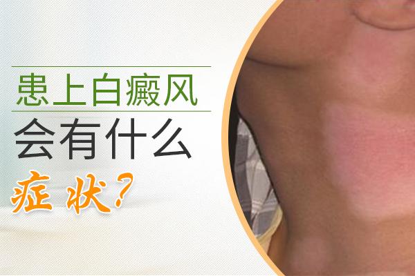 腰部白癜风有啥症状?