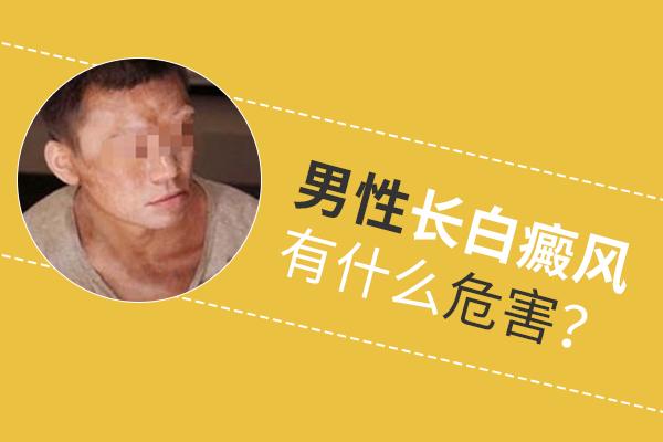 白癜风长在男性颈部会有什么危害