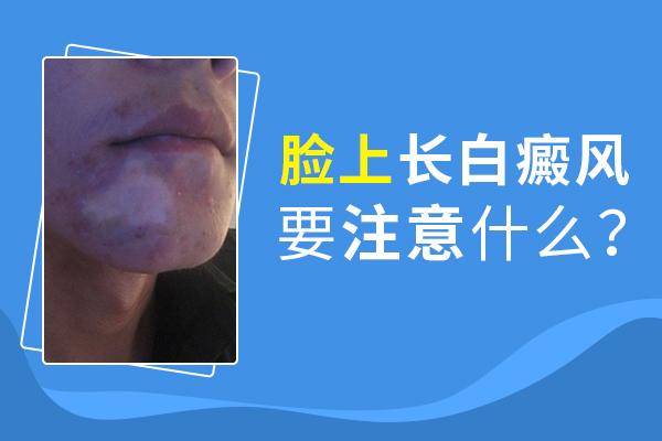 脸上的白癜风治疗注意什么呢?
